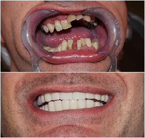 Before and After Porcelain Crowns Buenos Aires