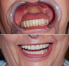 Dental Implants in Buenos Aires